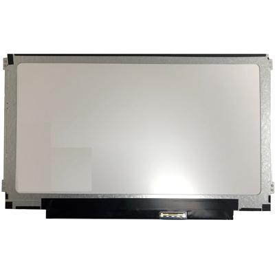 "BOE M116NWR1-R3 11.6"" LED Laptop Replacement Screen HD 40 Pin Side Mounting Brackets Matte Finish"