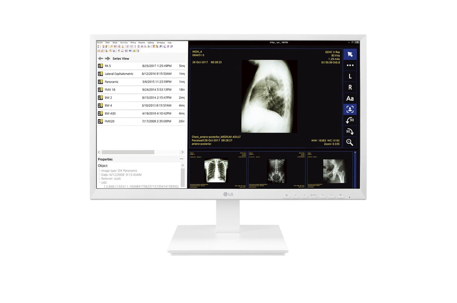 """LG 24CK560N-3A All-in-One PC/workstation 60.5 cm (23.8"""") 1920 x 1080 pixels AMD G 4 GB DDR4-SDRAM 32 GB SSD Wi-Fi 4 (802.11n) White"""