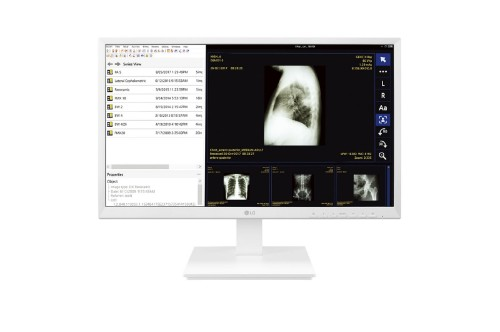LG 24CK560N-3A All-in-One PC/workstation 60.5 cm (23.8